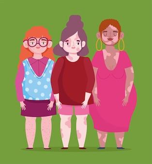 Perfect onvolmaakt, cartoon vrouwelijke groep met vitiligo, sproeten, probleemhuid