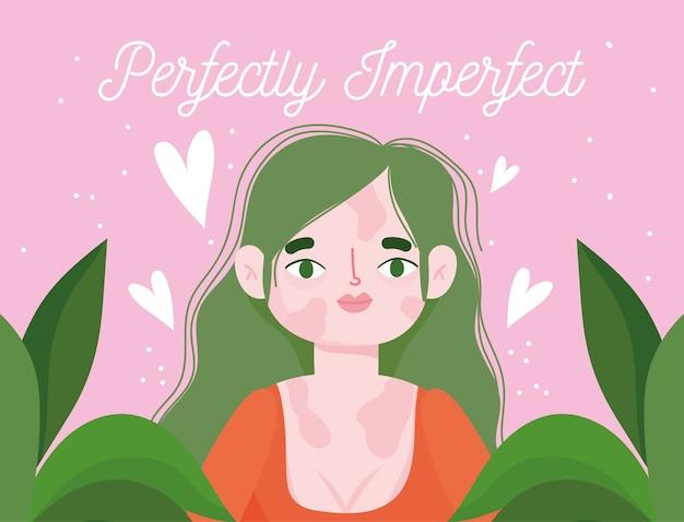 Perfect onvolmaakte, cartoonvrouw met pigmentziekte