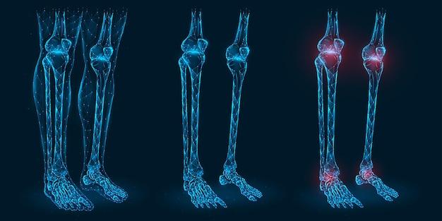 Pijn, letsel of ontsteking in de veelhoekige illustratie van de knieën en enkels. laag poly-model van zieke knie- en enkelgewrichten.