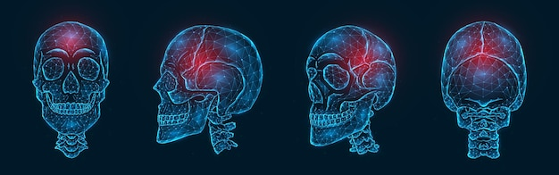 Pijn, letsel of ontsteking van de veelhoekige illustratie van de schedelbeenderen. laag poly-model van een menselijke schedel