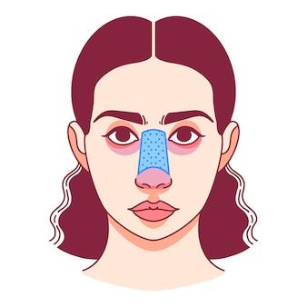 Plastische chirurgie van de neus, neuscorrectie. vector illustratie