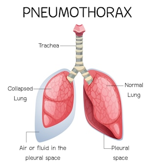 Pneumothorax cartoon van menselijke anatomie