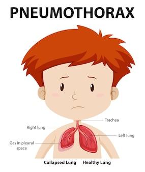 Pneumothoraxdiagram van de menselijke anatomie