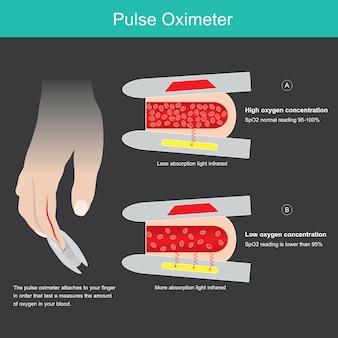 Pulsoximeter. illustratie voor het leren van een medisch hulpmiddel dat wordt gebruikt voor het meten van de zuurstofverzadiging in het bloedvat vanaf de tipvinger.