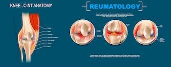 Realistische Banner Illustratie Kniegewricht Anatomie