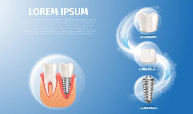 Realistische beeldstructuur van het tandimplantaat Premium Vector