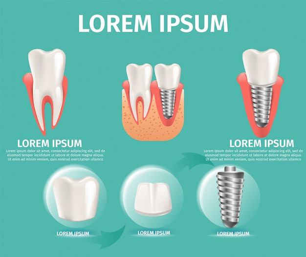Realistische beeldstructuur van het tandimplantaat