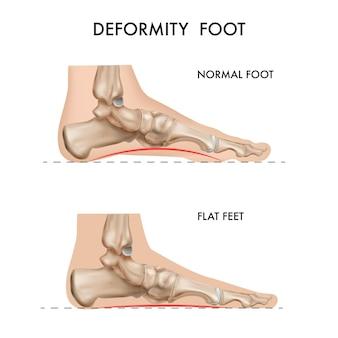 Realistische botten van anatomische voet