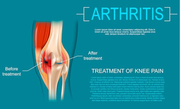 Realistische illustratie behandeling van kniepijn