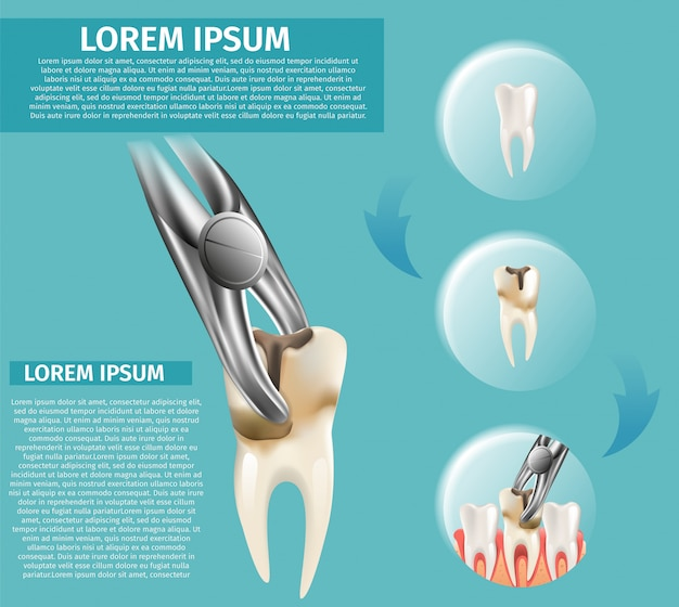 Realistische illustratie infographic tandheelkundige chirurgie