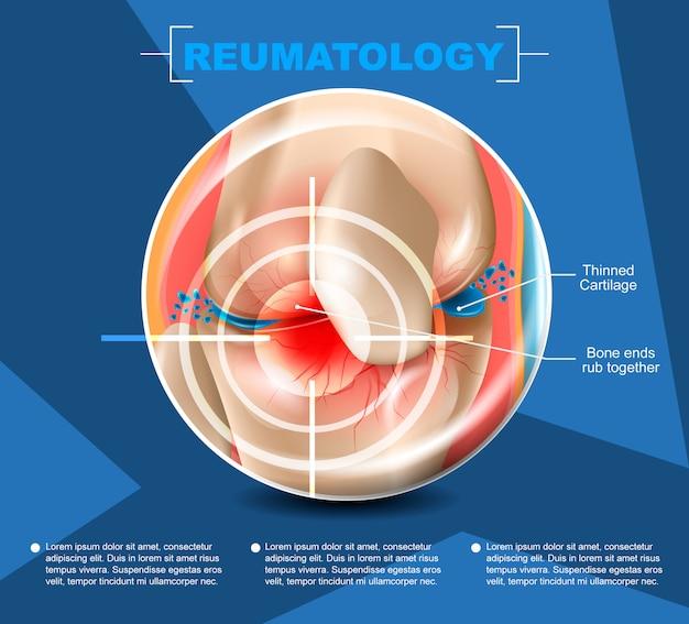 Realistische illustratie reumatology medicine in 3d