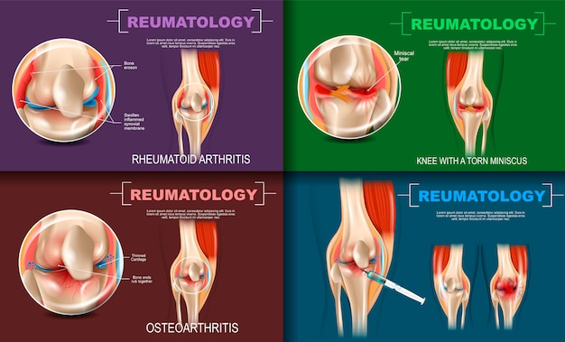 Realistische illustratie reumatology medicine in 3d