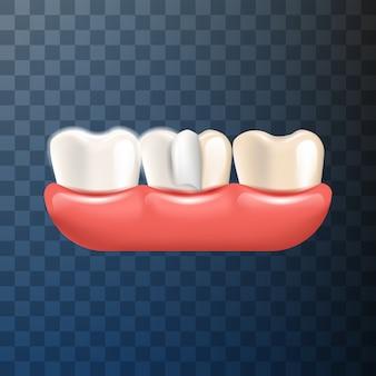 Realistische illustratie tandheelkundige kroon in 3d-vector