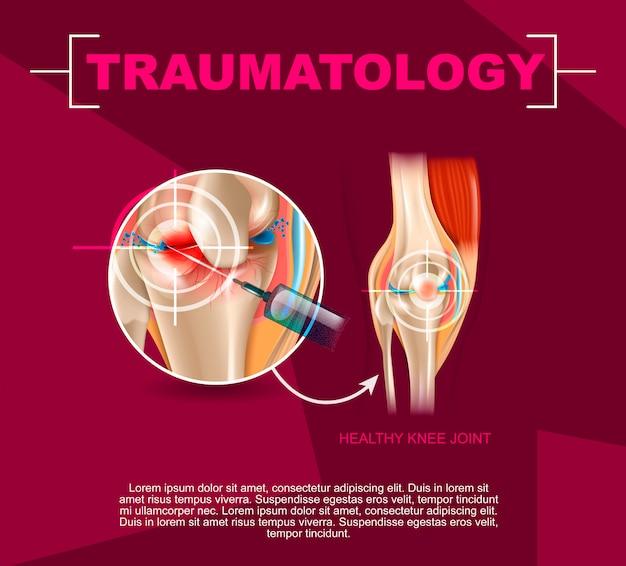 Realistische illustratie traumatologie geneeskunde in 3d