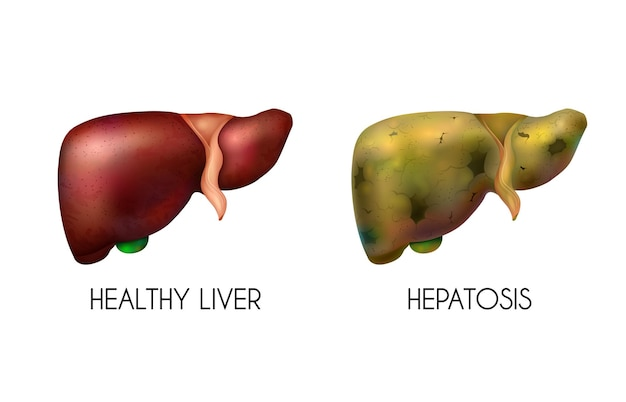 Realistische menselijke inwendige organen lever gezond normale ongezonde vetsamenstelling met twee verschillende kleuren wanneer de ziekte aanwezig is illustratie