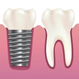 Realistische menselijke tand en tandheelkundig implantaat stomatologie gezondheidszorgconcept.