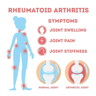 Reuma infographic. botziekte te voet, met de hand