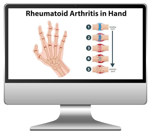 Reumatoïde artritis symptomen bij de hand op de desktop van de computer