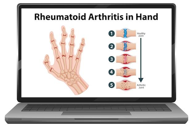 Reumatoïde artritis symptomen bij de hand op laptop scherm