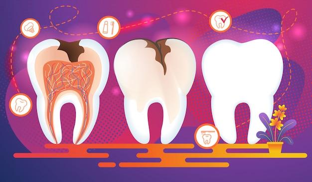 Rij tanden met tandheelkundige problemen