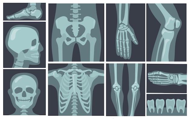 Röntgenfoto's van het menselijk lichaam