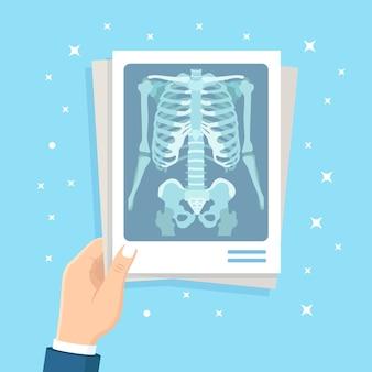 Röntgenfoto van het menselijk lichaam in de hand. röntgen van borstbeen. medisch onderzoek voor een operatie