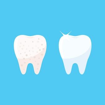 Schone en vuile tand
