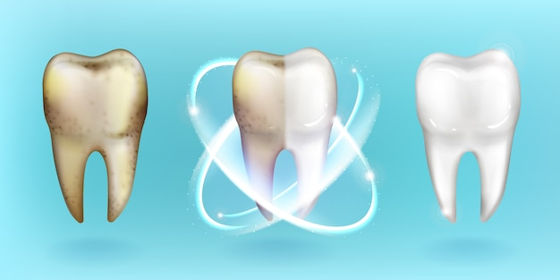 Schone en vuile tanden, tanden bleken of reinigen