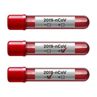 Set reageerbuis met bloedmonster voor covid-19, coronavirus-test