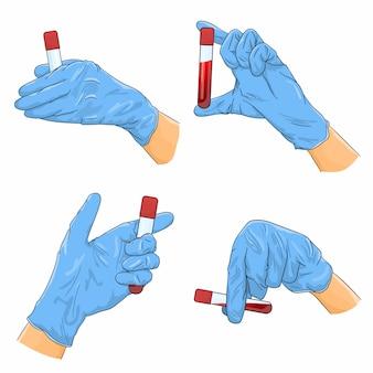 Set van handen in medische handschoenen met een buis met bloed