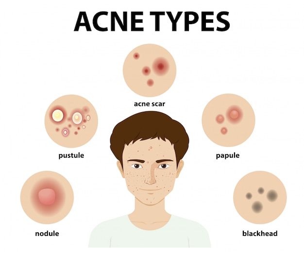 Soorten acne op de huid of puistjes