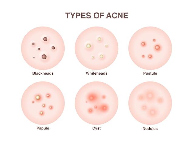 Soorten acne, puistjes, huidporiën, mee-eter, whitehead, litteken, comedo. iconen van acne huid puistjes, cosmetologie en huidverzorgingsproblemen.