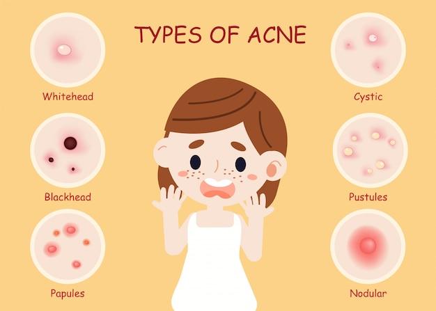 Soorten acne
