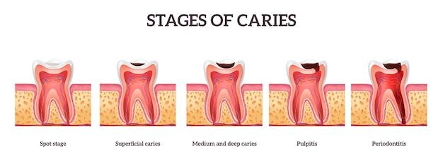 Stadia van cariës