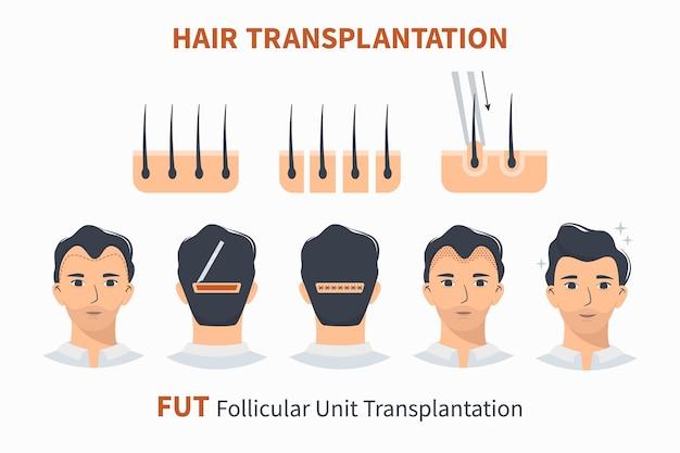 Stadia van haartransplantatie fut folliculaire eenheid