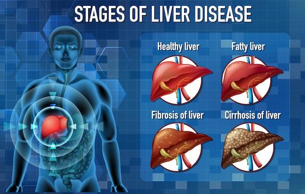 Stadia van leverziekte