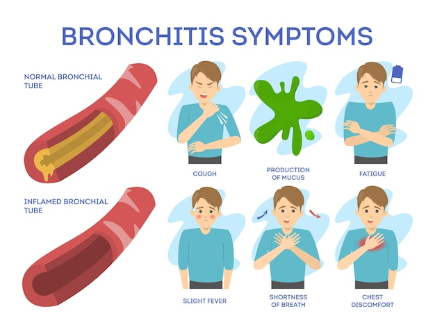 Symptomen van bronchitis ingesteld. chronische ziekte. pijn op de borst en vermoeidheid, aandoeningen van de luchtwegen. illustratie in cartoon-stijl