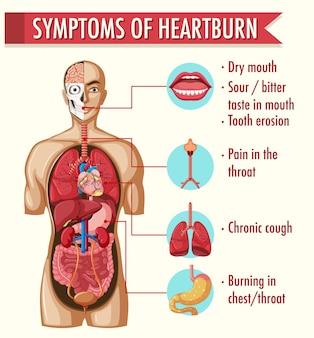 Symptomen van infografische informatie over maagzuur