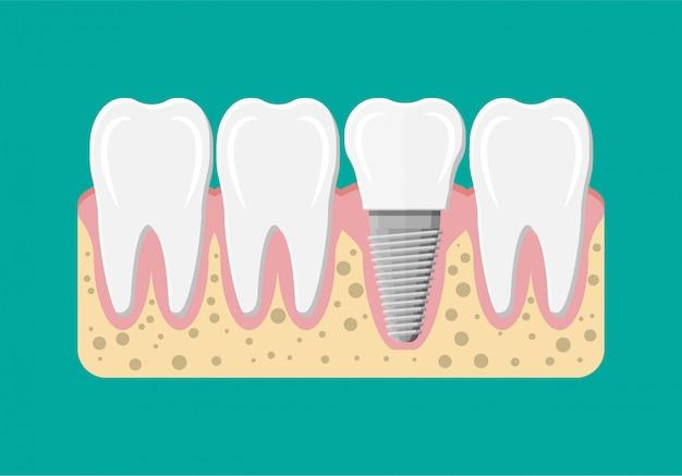 Tand restauratie. tandheelkundig implantaat.