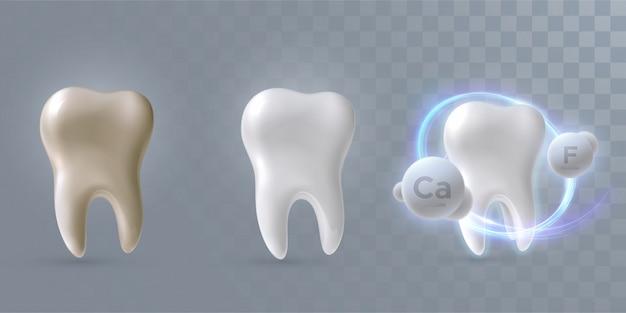 Tanden geplaatst van schoon tot vuil proces, geïsoleerd op lichtgele achtergrond, 3d illustratie