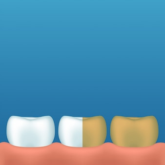 Tanden op blauw
