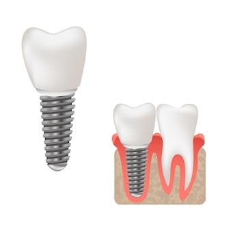 Tandheelkundig implantaat en gezonde tanden wetenschappelijk modern ontwerp