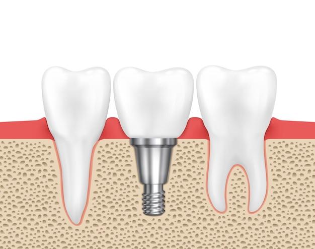 Tandheelkundig menselijk implantaat. medische menselijke tand, tandheelkundige implantaat, tandheelkunde implantaat tand, tandheelkundige inplant vectorillustratie