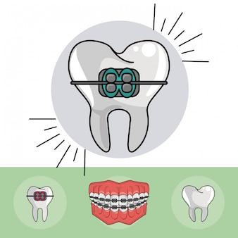 Tandheelkundige beugels elementen