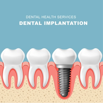 Tandheelkundige implantatie - rij tanden in het tandvlees met implantaat