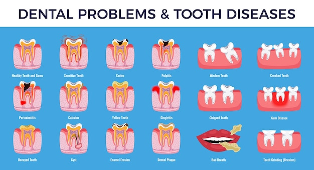 Tandproblemen educatieve infographic infografiek set met cariës preekstoel ontsteking tandplak glazuur erosie