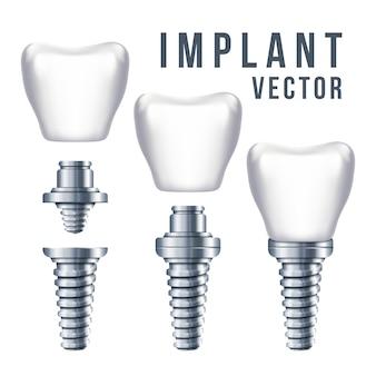 Tandtandimplant en delenillustratie. implantatie tandheelkunde en verzorging van tanden