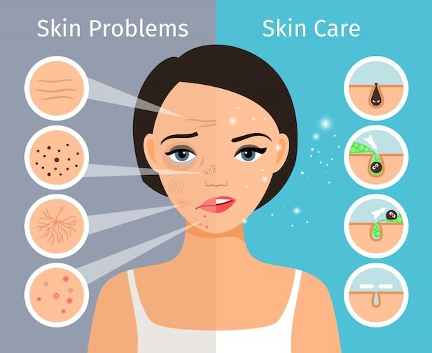 Thuis gezichtshuid schoon en vet, verzorging en cosmetologie. vrouwelijk hoofd met mooie de oplossings vectorillustratie van huidproblemen