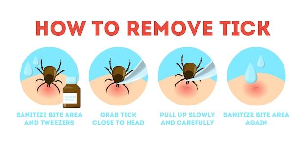 Tips voor tekenveiligheid. hoe mijt te verwijderen