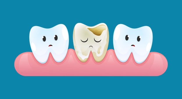 Twee droevige tanden op tandvlees kijken naar een tand met cariës.